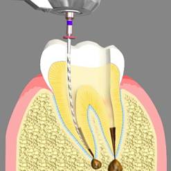 Root Canal Treatment Apex NC